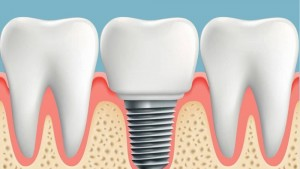 Periodontist-Houston-1000x563
